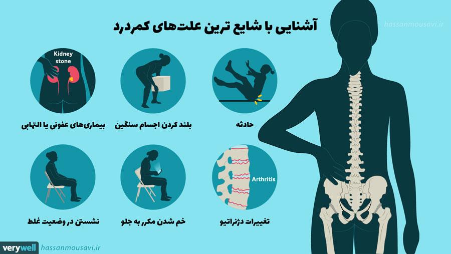 ورزش پیلاتس برای کمر درد: آشنایی با شایع ترین علتهای کمردرد، دلیل اغلب کمر دردها ناشی از ضعف عضلات و ساختار یا وضعیت نامناسب بدن است.