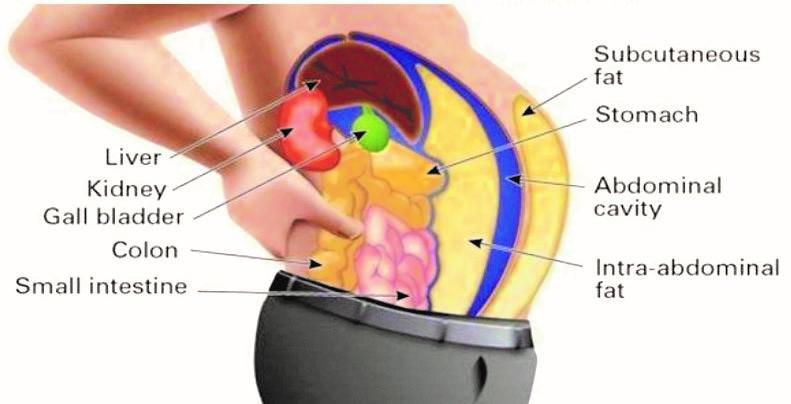 عوامل چاقی شکم کم نیستند و بیشمارند از جمله عوامل ژنتیکی، اختلالات هورمونی، عوارض دارویی، خواب ناکافی، راحت طلبی، لذت جویی، درهم خوری و...